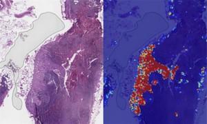 再次战胜人类,谷歌AI在乳腺癌检测中获得99%准确率